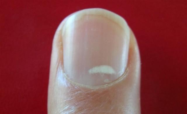 Если вы видите это на ваших ногтях, немедленно обратитесь к врачу!