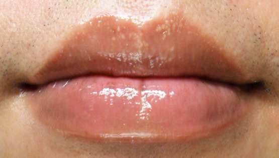 Появилось белое пятно на губе — Обратите Внимание! Ваш организм дал сбой