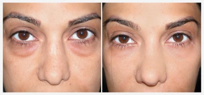 У вас мешки под глазами? Используйте пищевую соду, эффект НЕВЕРОЯТНЫЙ!