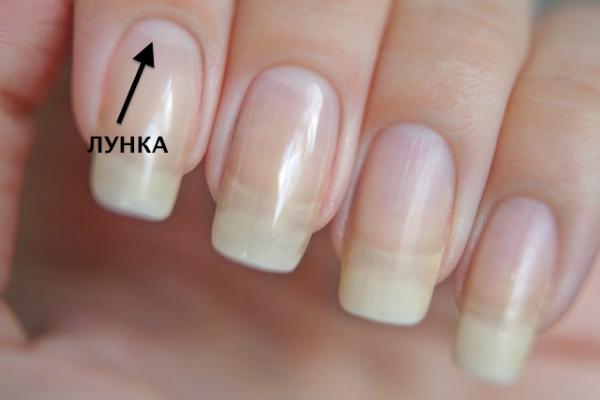 Вот почему могут исчезнуть белые лунки у основания ногтя: не пропусти тревожный симптом!Вот почему могут исчезнуть белые лунки у основания ногтя: не пропусти тревожный симптом!Вот почему могут исчезнуть белые лунки у основания ногтя: не пропусти тревожный симптом!