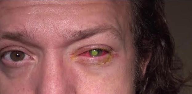 Взглянув в глаза этого 39-летнего мужчины, доктор упал со стула. Что это?