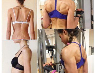 В Италии девушка вылечилась от анорексии благодаря Instagram (фото)