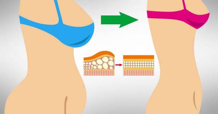 Кортизоловый живот: почему появляется и как избавиться от стрессового жира