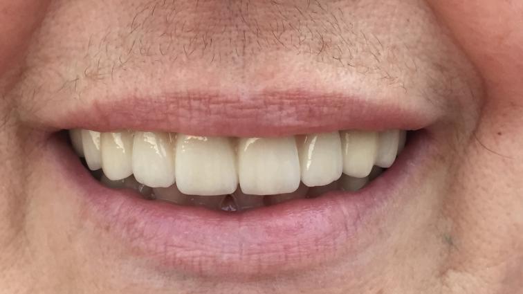 Известный футболист остался без зубов