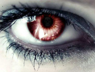 5 причин, почему краснеют глаза. Не проигнорируйте их!