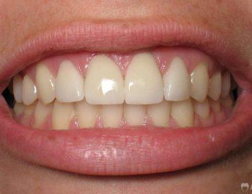 5 мифов об уходе за зубами