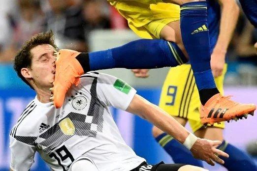 Шокирующие кадры: Немецкому игроку въехали шипами в лицо
