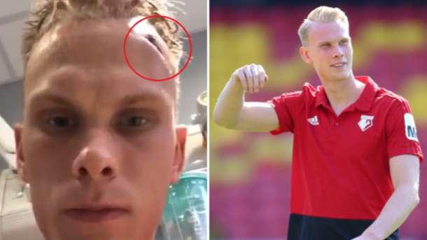 Молодой английский футболист получил серьезную травму головы во время тренировок